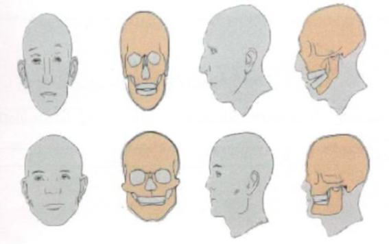 Dolicocefálicos e Braquicefálicos